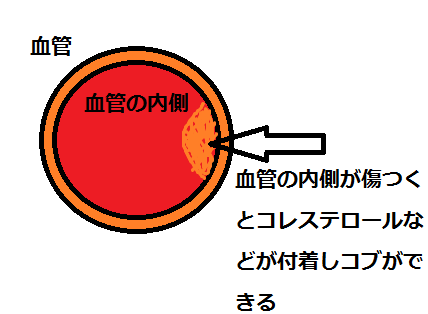 血管にアテローム
